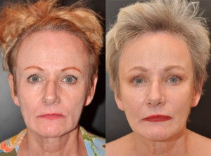 65 year old female facial skin firming with Sculptra after 1427606