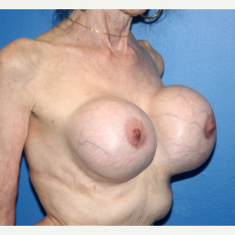 65-74 year old woman treated with Breast Implant Revision before 3366548