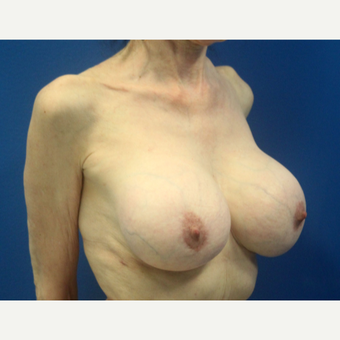 65-74 year old woman treated with Breast Implant Revision after 3366548