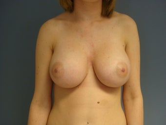 21yo Breast Augmentation Revision