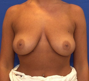 28 Year Old with Breast Augmentation before 1140022