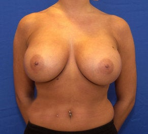 28 Year Old with Breast Augmentation after 1140022