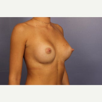 Sientra Breast Implants after 1768219