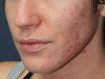 Before & After Photodynamic Therapy 931522
