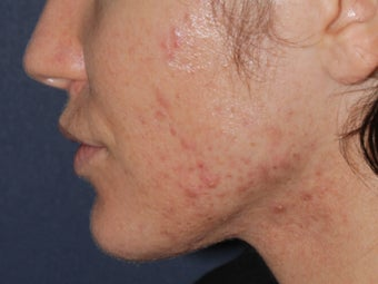 Before & After Photodynamic Therapy after 931522