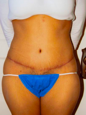Tummy Tuck after 1007872