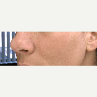 35-44 year old woman treated with Chemical Peel after 3713497