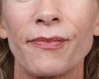 Radiesse for Nasolabial Folds and Chin