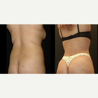 18-24 year old woman treated with Liposuction before 3717681