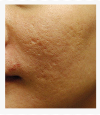 Acne Scar Vitalizer Treatment Before and After Asian Skin before 1422901