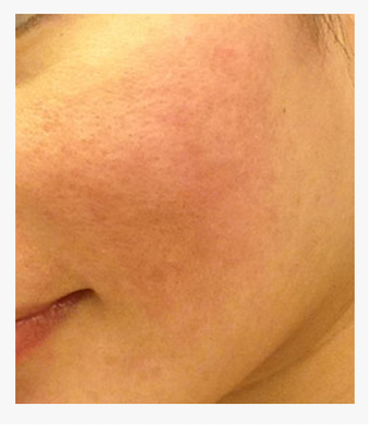 Acne Scar Vitalizer Treatment Before and After Asian Skin after 1422901