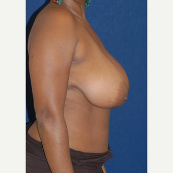 35-44 year old woman treated with Breast Reduction 1556081