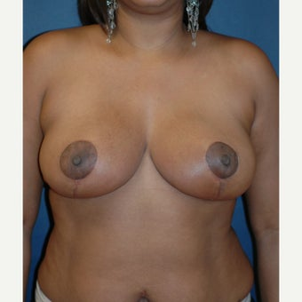 35-44 year old woman treated with Breast Reduction after 1556081