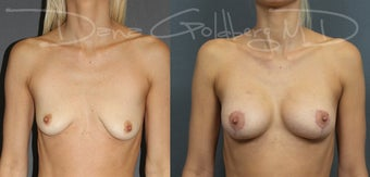 Breast Lift with Saline Implants before 3365789