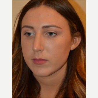 18-24 year old woman treated with Rhinoplasty after 3657957