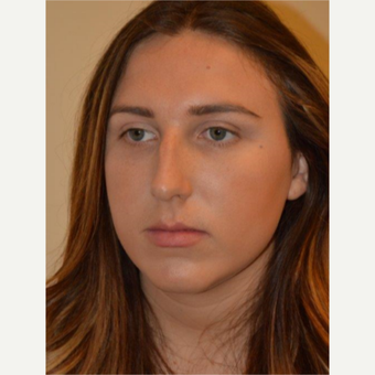 18-24 year old woman treated with Rhinoplasty before 3657957