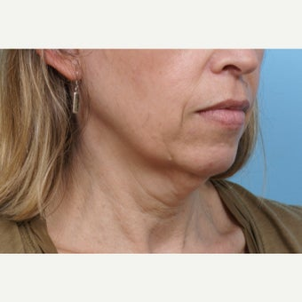 45-54 year old woman treated with SMAS Facelift 1898791