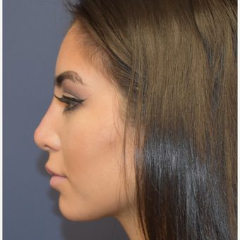 18-24 year old woman treated with Non Surgical Nose Job after 3854704