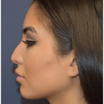 18-24 year old woman treated with Non Surgical Nose Job before 3854704
