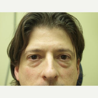 35-44 year old man treated with Eye Bags Treatment before 1731966