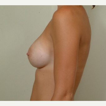 25-34 year old woman with post pregnancy psuedoptosis treated with Breast Augmentation after 3364485