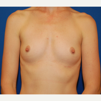 35-44 year old woman treated with Breast Implants before 3589619