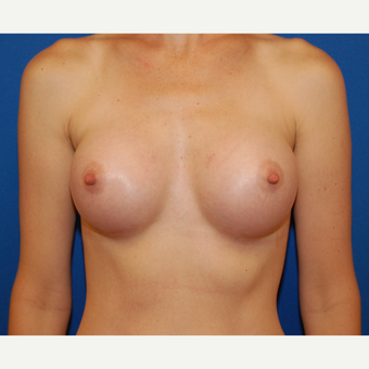 35-44 year old woman treated with Breast Implants after 3589619