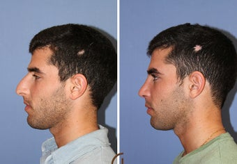 male rhinoplasty after 442586