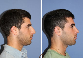 male rhinoplasty 442586