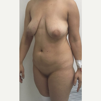 35-44 year old woman treated with Mommy Makeover before 3090095