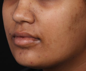 Peel for Pigmented Acne Scars