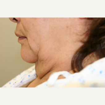 55-64 year old woman treated with Vaser Liposuction before 2998731