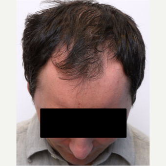 35-44 year old man treated with Organic Hair Transplant before 3172506