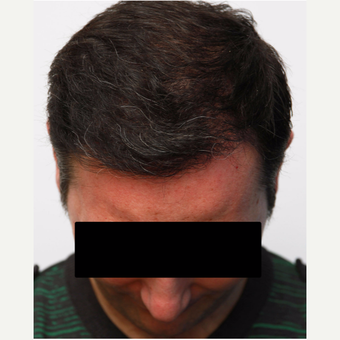 35-44 year old man treated with Organic Hair Transplant after 3172506