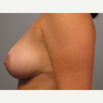 25-34 year old woman treated with Breast Lift after 3453342