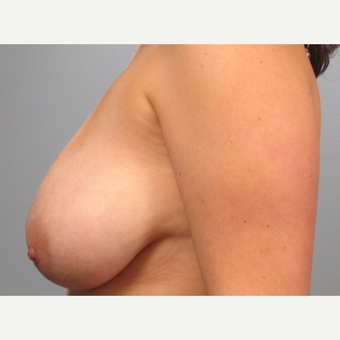 25-34 year old woman treated with Breast Lift before 3453342