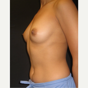 25-34 year old woman treated with Breast Implants before 3104034