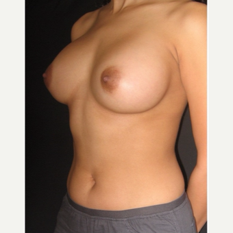 25-34 year old woman treated with Breast Implants after 3104034