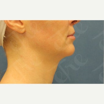 35-44 year old woman treated with Kybella before 2585057