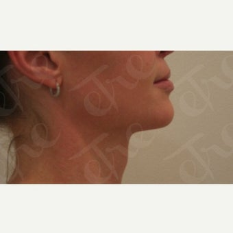 35-44 year old woman treated with Kybella after 2585057