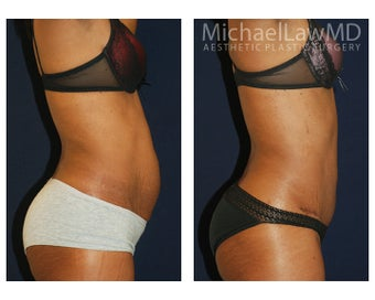 Abdominoplasty before 1293784