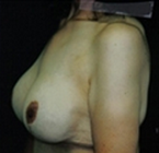 Breast Augmentation after 1985215