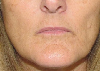 Lip Augmentation | Lip Implant for this 53 Year Old Female before 1432139