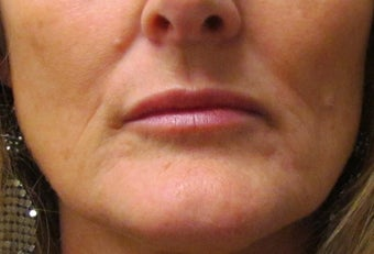 Lip Augmentation | Lip Implant for this 53 Year Old Female after 1432139
