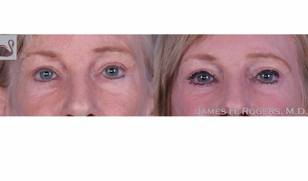 55-64 year old woman treated with Eyelid Surgery before 3844176
