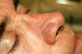 VeinGogh for Removal of Spider Veins on Nose before 1166002