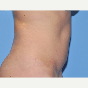 45-54 year old woman treated with Liposuction after 3258620