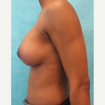 25-34 year old woman treated with lift and augmentation after 2442892