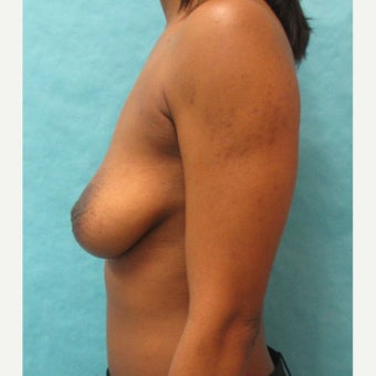 25-34 year old woman treated with lift and augmentation before 2442892