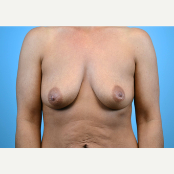 35-44 year old woman treated with Breast Implants before 3440923